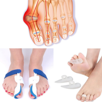 Bütykös láb kezelésére szolgáló- korrekciós csomag